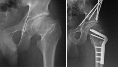 Perthes disease pre-op and post-op PAO surgery, periacetabular osteotomy