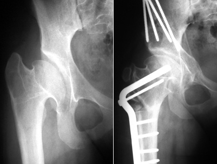 X-rays of a 13-year-old girl with severe Perthes deformity